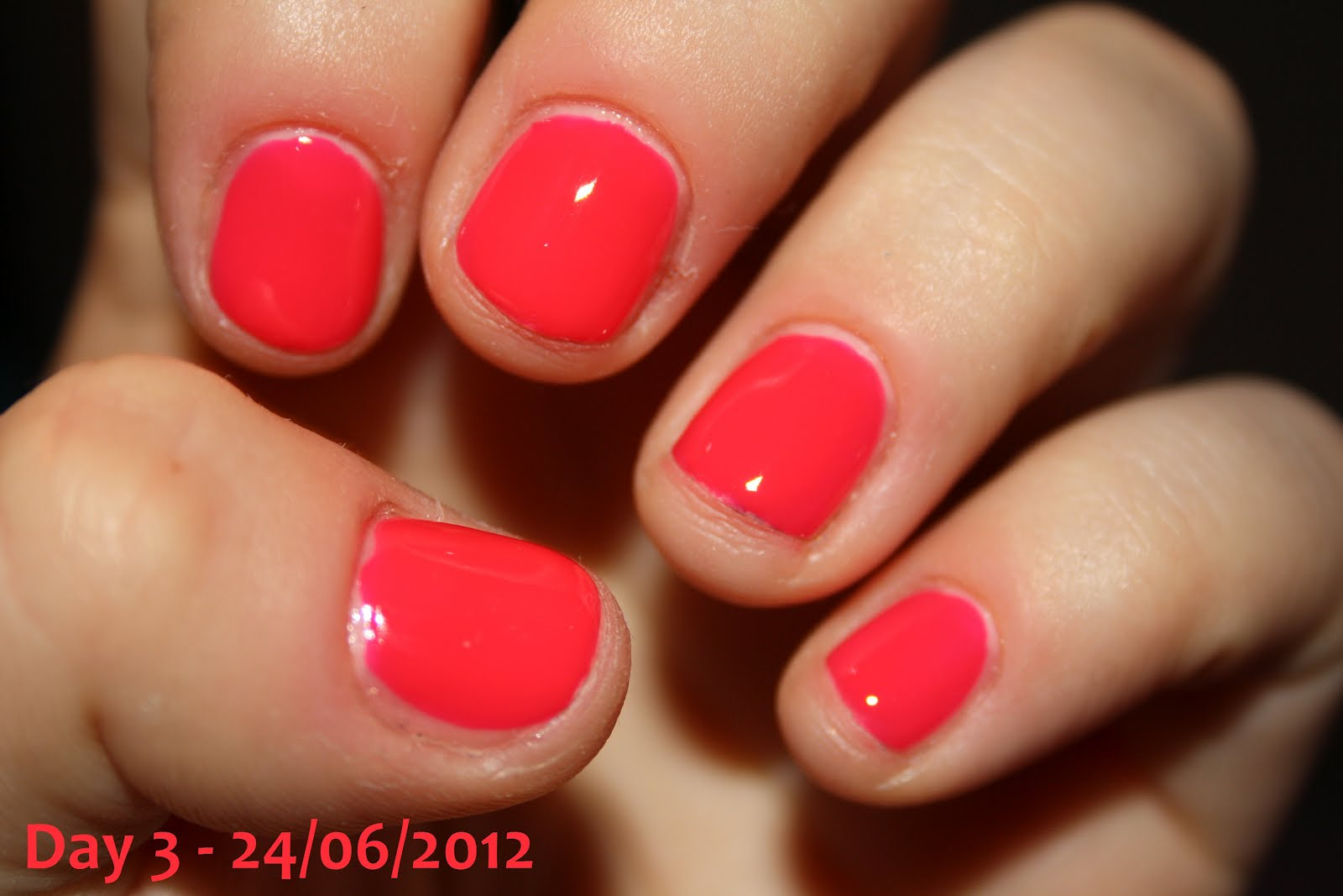 OMFGyournails: Nail growth \