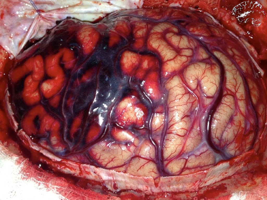 Beneficio do cateter de alto fluxo em neonatologia 5