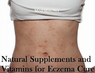 Natural Supplements and Vitamins for Eczema Cure
