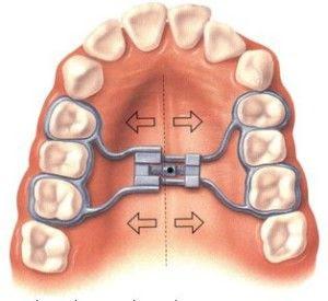 aparelho dentário, aparelho fixo, aparelho ortodôntico, diastema, disjuntor palatino, diário aparelho dentário, expansor fixo, expansor palatino, hirax, hyrax, mordida cruzada, ortodontia,