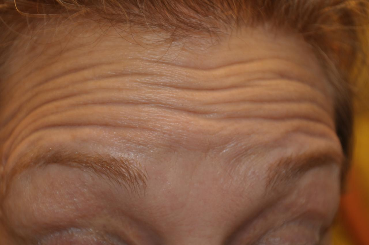 How To Get Rid Of Furrowed Brow Naturally