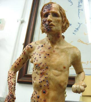 Image of Bubonic Plague