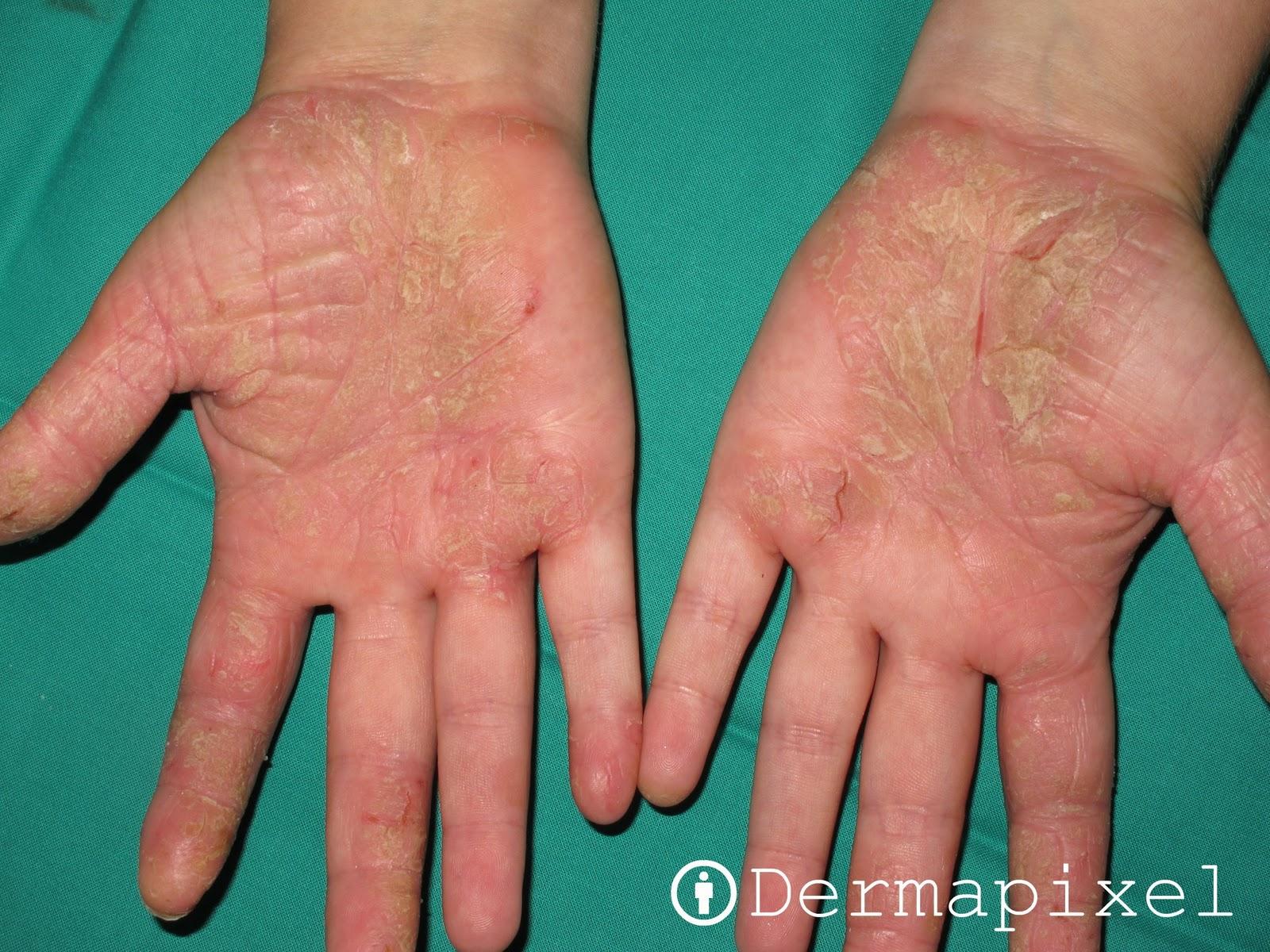 De por de que surge la enfermedad la psoriasis