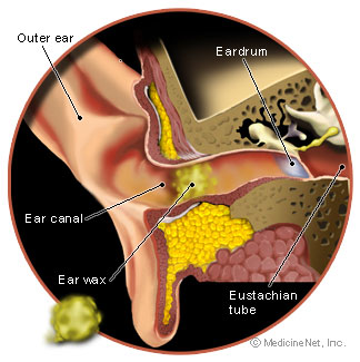 ear wax drops instructions