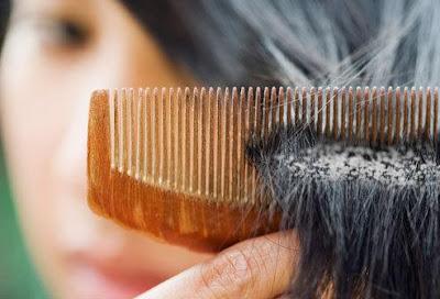 ما أسباب ظهور قشرة الشعر...وكيف نتخلص منها