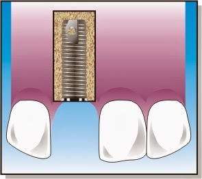www.dentistinchennai.com/implant-procedures.php