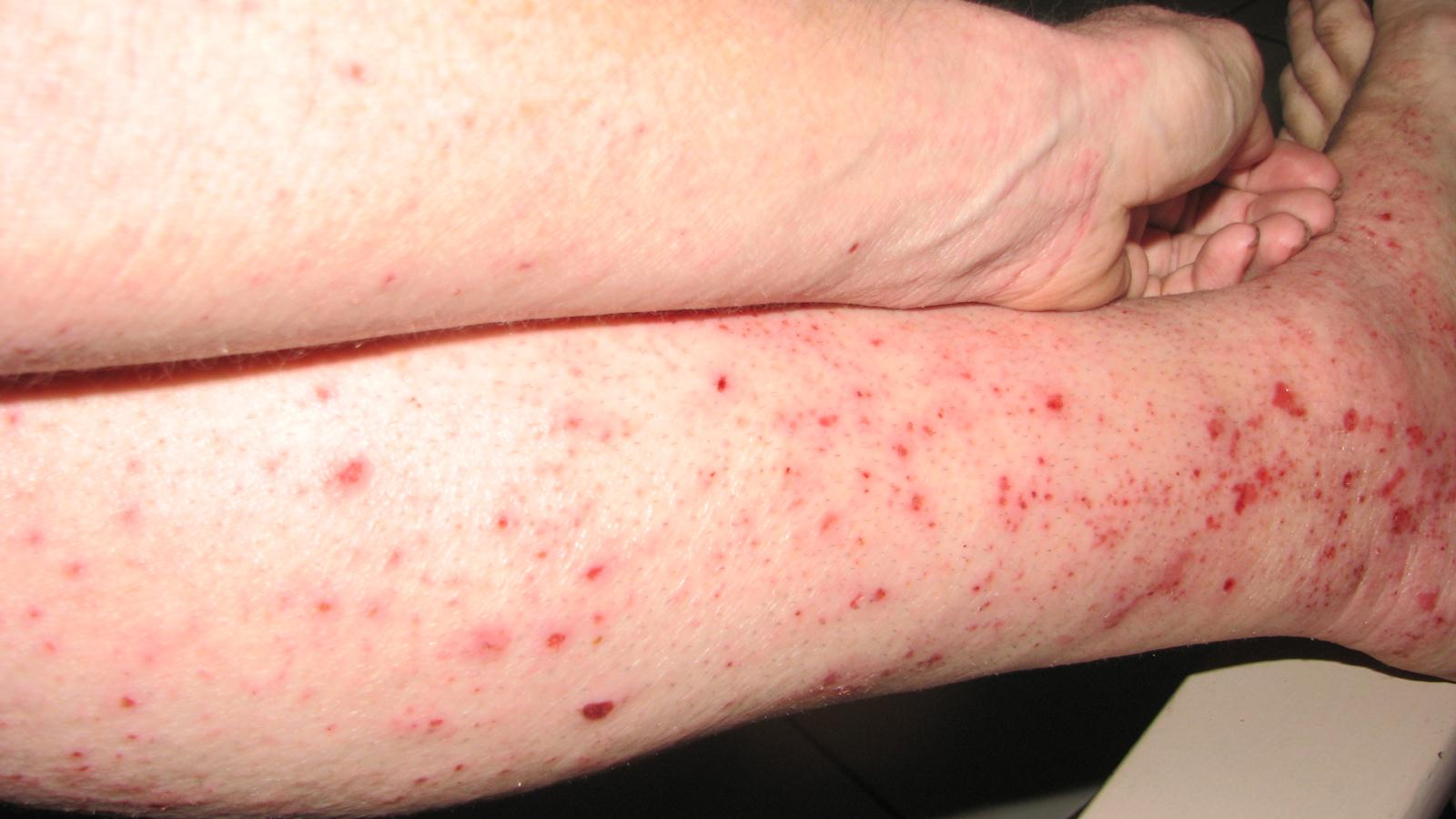 Prednisone Withdrawal Symptoms Rash