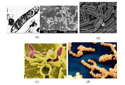 Proteobakteria: a. Acidithio-bacillus; b. Escherichia coli; c. Salmonella; d. Neisseria meningitidis