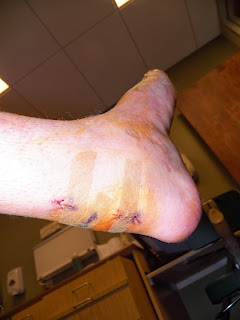 heel cord incision, steri strips, foot surgery