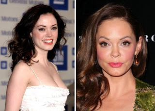 Kegagalan Operasi Plastik Rose McGowan