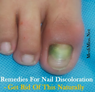 how to get rid of green nails