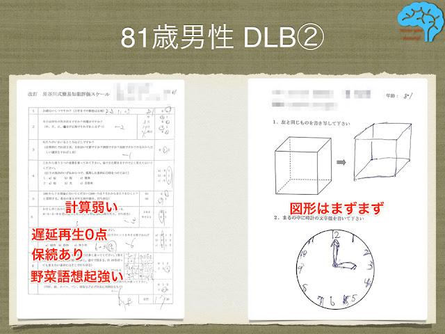 81歳男性DLBの長谷川式と時計描画テスト