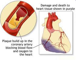 Disease condition of heart muscle