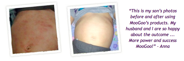 MooGoo Eczema and Psoriasis Balm