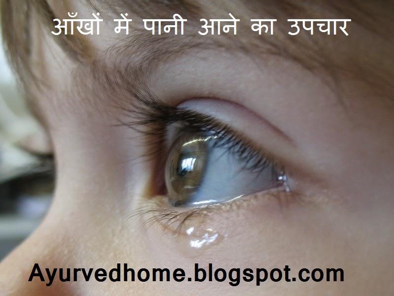 आँखों में पानी आने का उपचार
