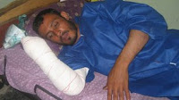 Summary amputations: Taliban justice in Afghanistan