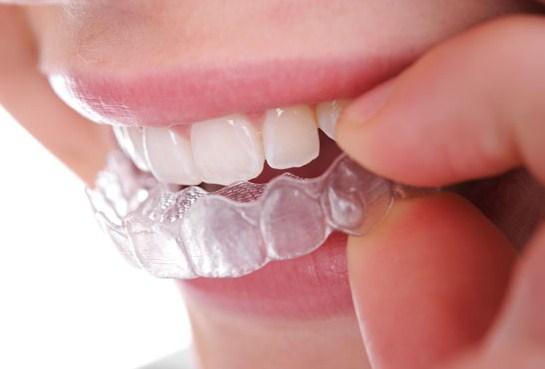 albirea dintilor cu gel in gutiere