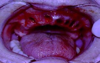 Disadvantages of Immediate Dentures