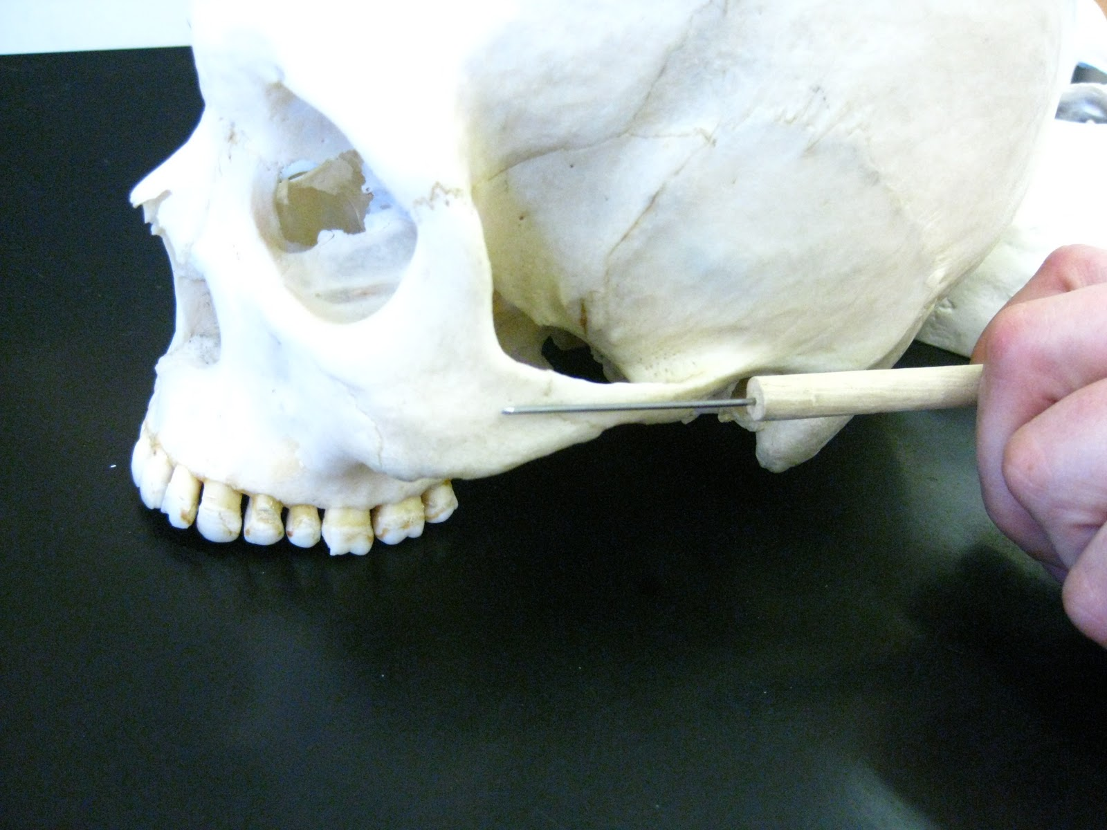 Boned Human Skull Zygomatic Arch Union Of Zygomatic Bone And