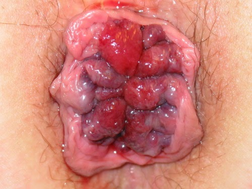 Home treatment fourth-degree hemorrhoids pictures.