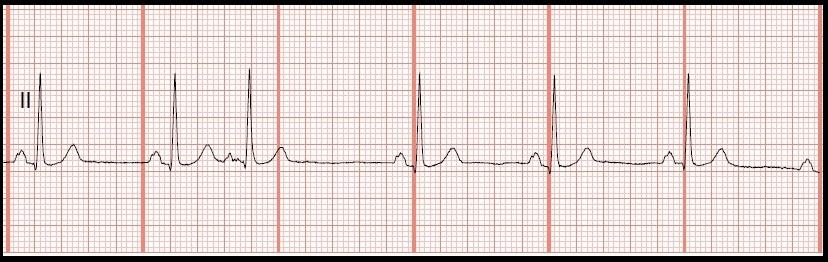 Sinus bradycardia ecg strip