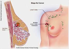 Cara Mengobati Penyakit Kanker Payudara Secara Herbal