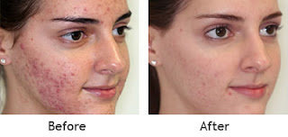 No scars no more how to get rid of acne scars overnight using urine has the uncanny ability to dramatically reduce redness relieve inflammation and make the skin tone more the former well known that urine and used ccuart Choice Image