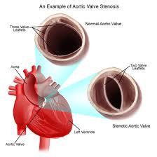 bicuspid aortic valve diagnosis