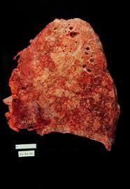 Cystic-fibrosis-figure