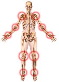 7 Jenis penyakit rematik dan cara mengobatinya