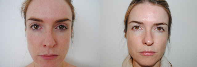Image Skincare Regime  Before (left) and After (right)