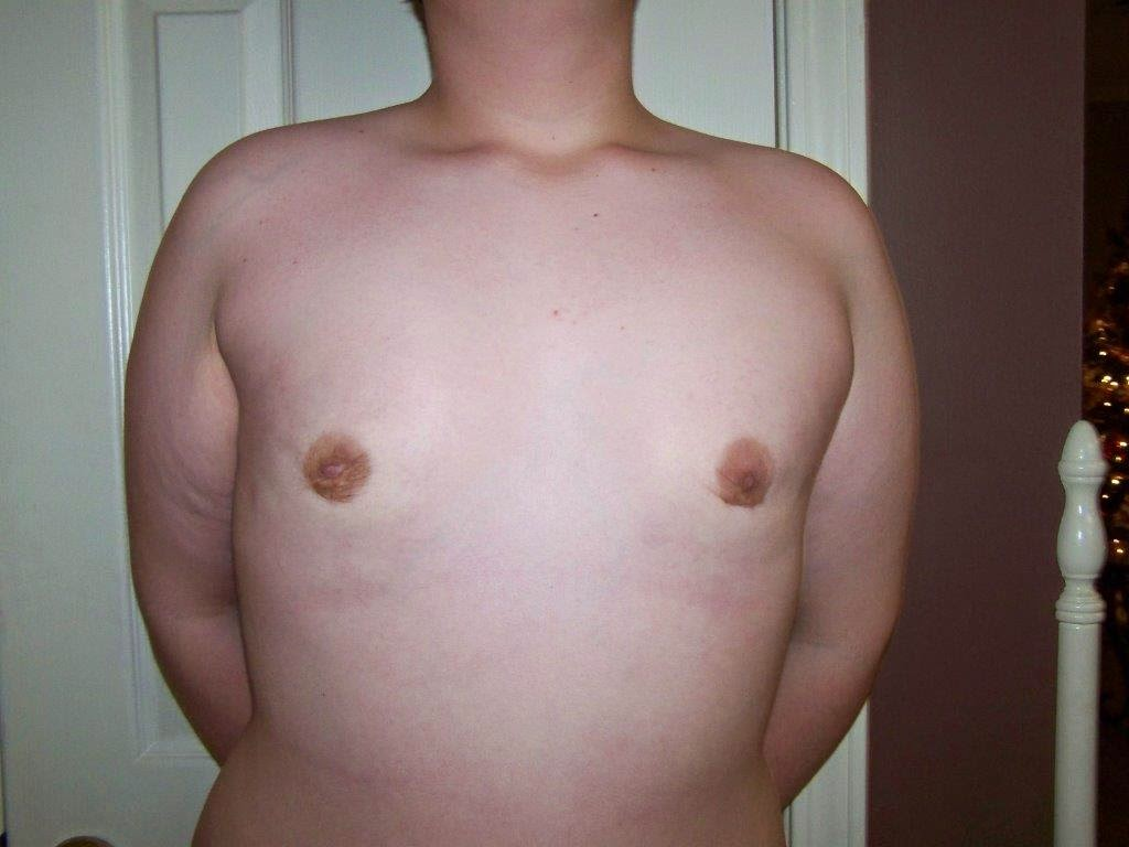 """One Stage Adolescent Gynecomastia Surgery"""