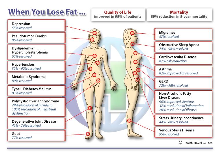 obesity health risks essay