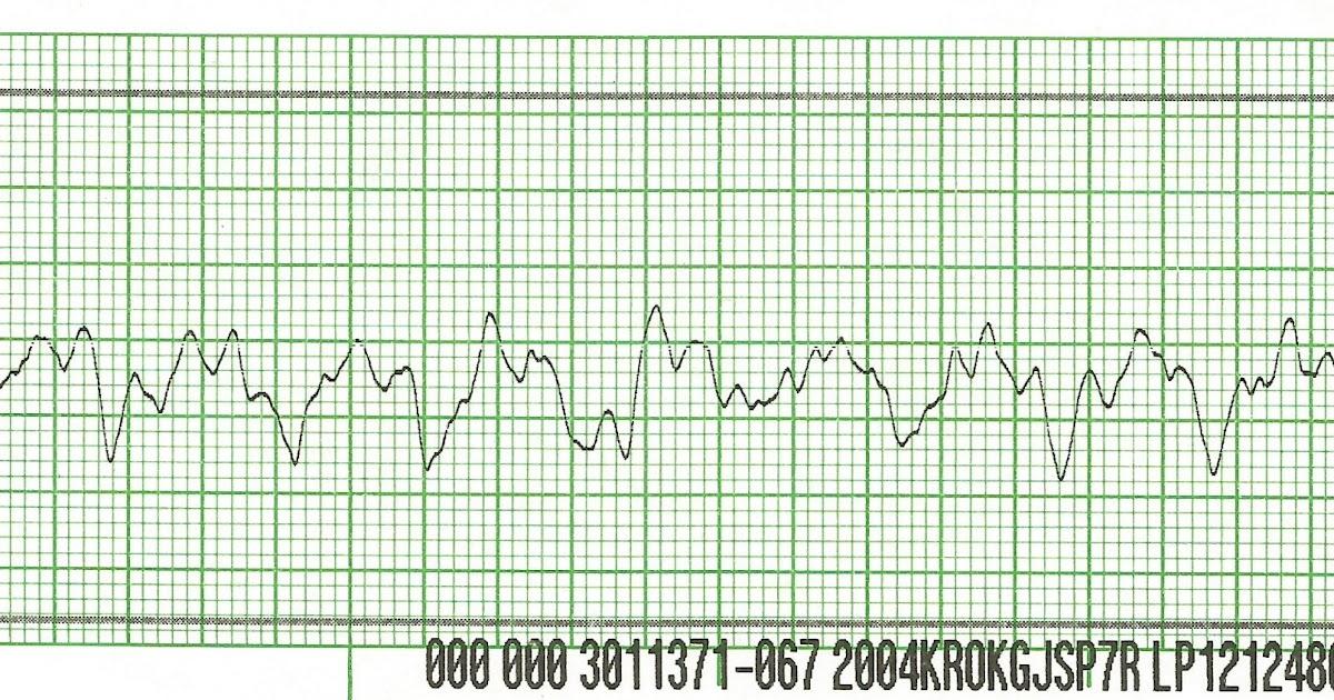 float nurse  code blue  refractory ventricular fibrillation