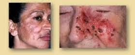 Bahaya krim pemutih wajah