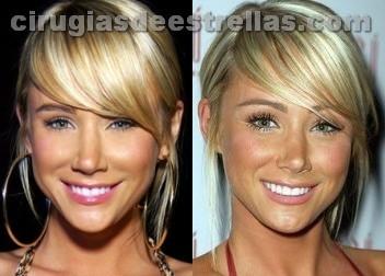 operacion de nariz antes y despues