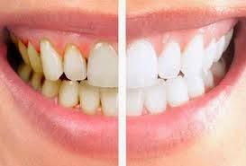 5 Cara Menghilangkan Karang Gigi