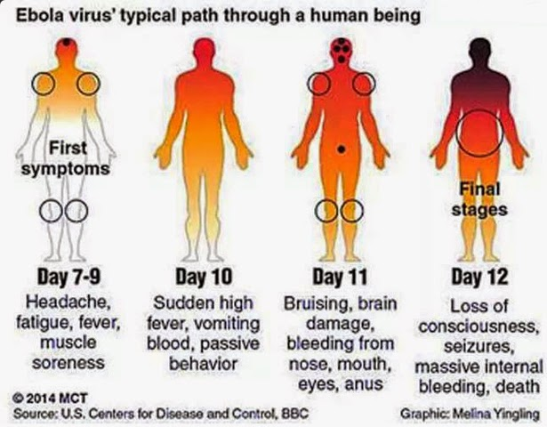 Ebola virus disease is a serious (hemorrhagic fever) illness. Here are brief about How to Prevent From Ebola Virus. Ebola Virus Symptoms, Causes & Treatment.