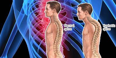 """""""terapi-bungkuk-bongkok-calsea-plus-high-calsium-susu-natural-nusantara-nyeri-tulang-belakang-persendian-gigi-patah-tulang"""""""