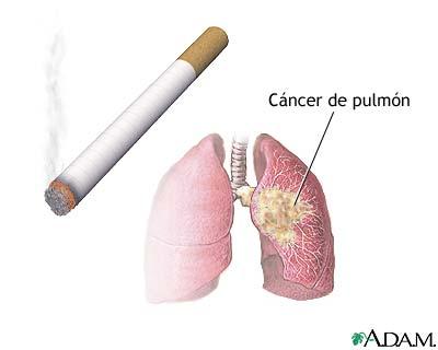 Por quanta inclinação de nicotina desaparece