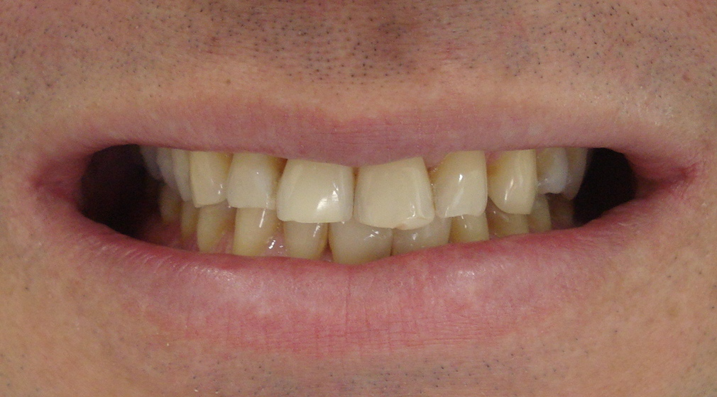 Studio Gorga Efeito De Diferentes Geis Clareadores Sobre A Dentina
