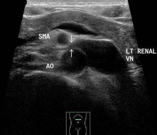 Nutcracker syndrome Radiology Case Radiopaediaorg