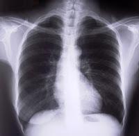 Novo exame para câncer de pulmão deixa possibilidade de cura superior a 80%
