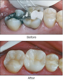 photo of before and after tooth colored cosmetic dental filling.