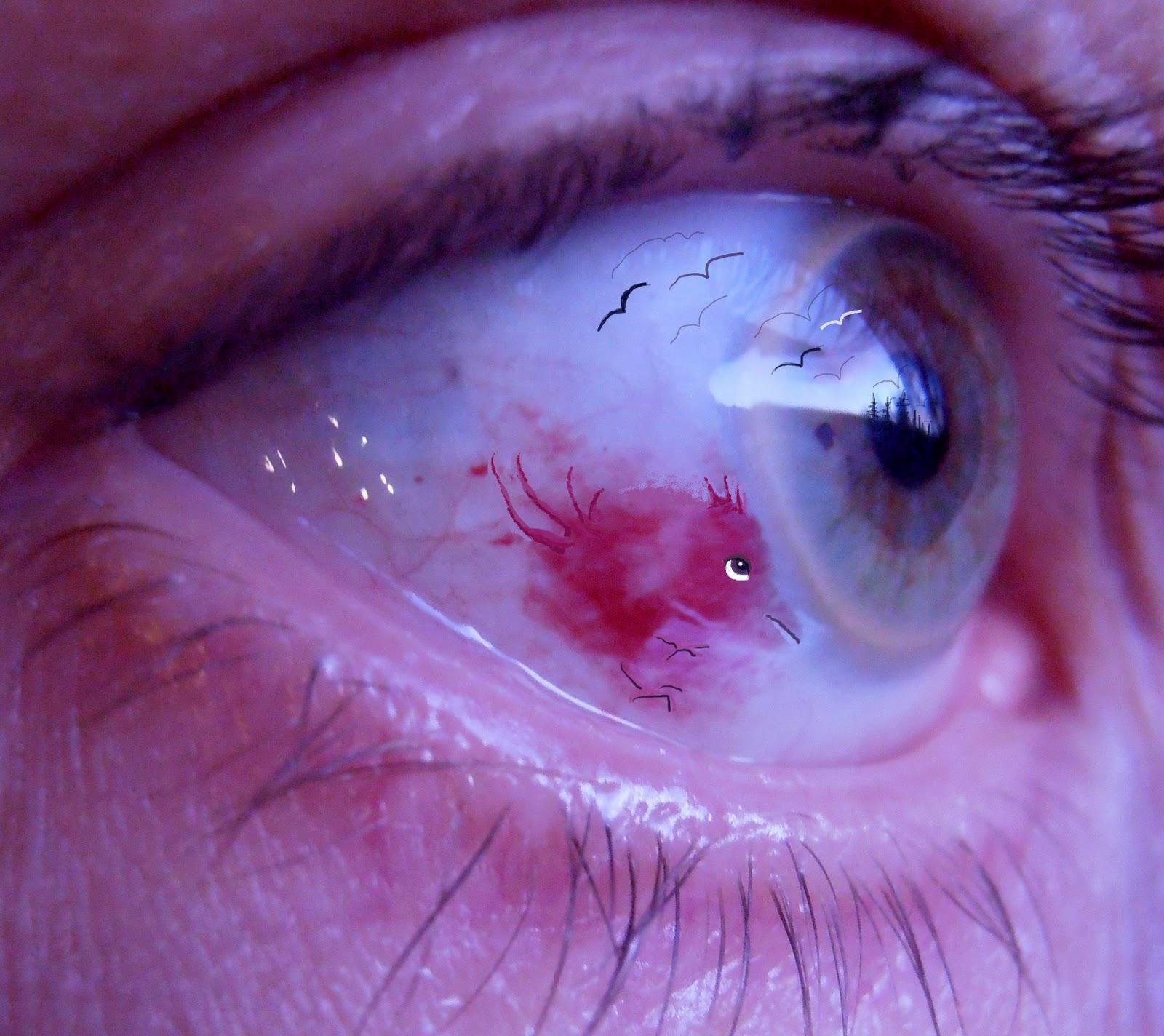 blodutgjutning i ögat