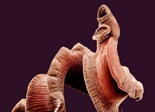 паразиты в ушах человека