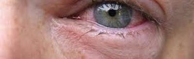 انتفاخ تحت العين