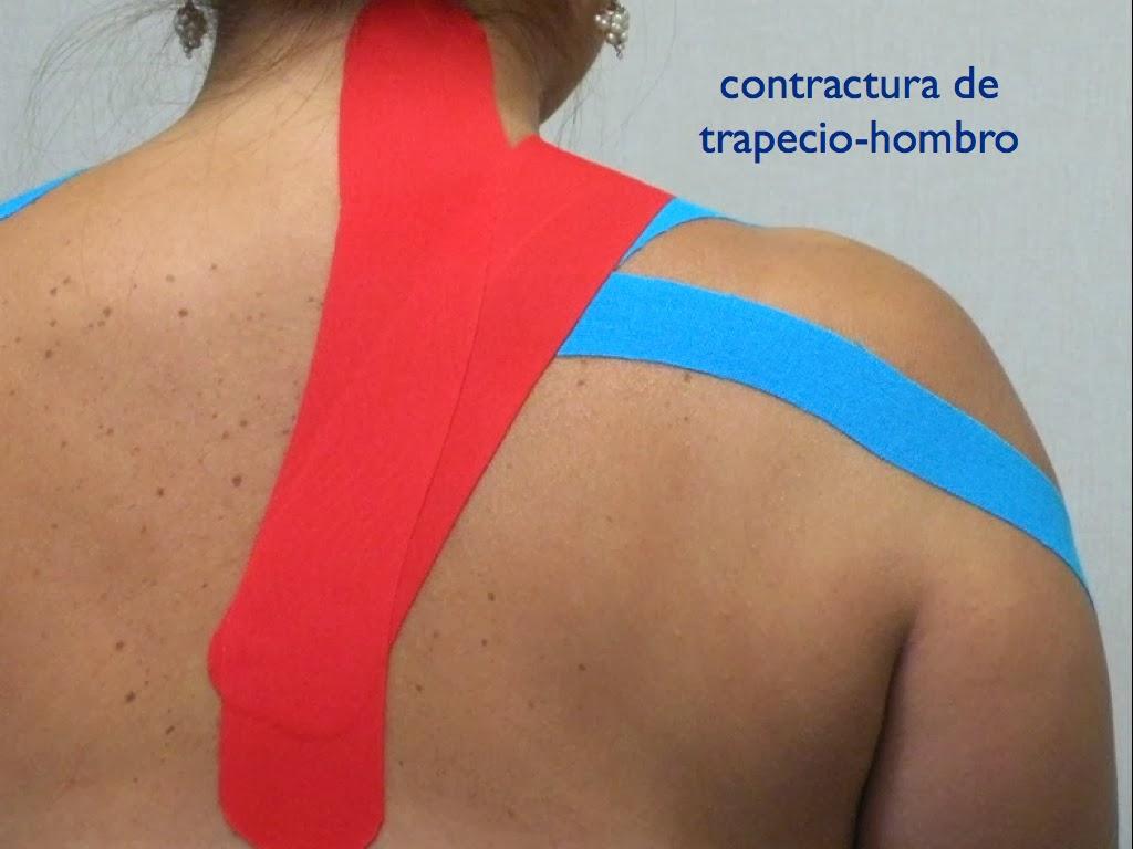 Los dolores en el lado izquierdo en la espalda al embarazo