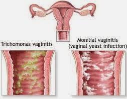 Bahaya Penyakit Vaginitis