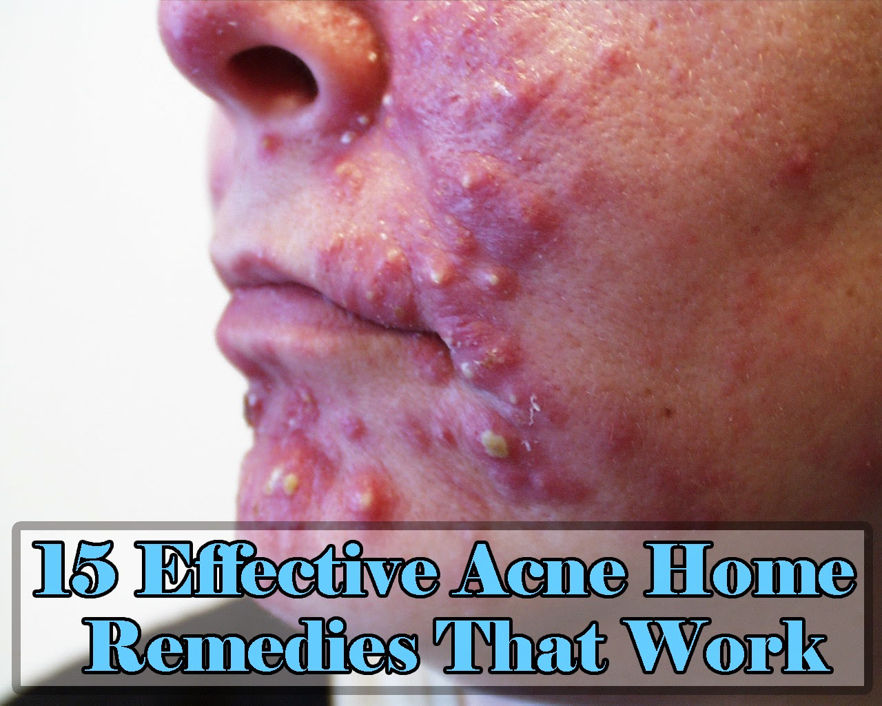 acne adult home treatment
